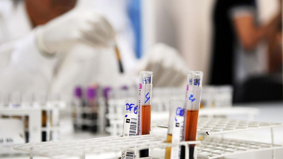 processo seletivo hemorrede go: a imagem mostra tubos de ensaio com sangue dentro e ao fundo profissional da saúde mexendo com outros tubos de ensaio